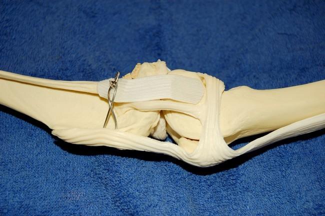 Rupture des ligaments croisés - Page 2 Rondaopegreffe